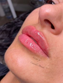 Lip Fillers By Camille Beaute Image00001