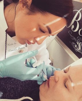 Lip Fillers By Camille Beaute Image00003
