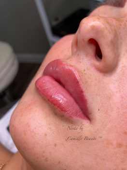 Lip Fillers By Camille Beaute Image00004